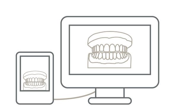 Začetek zdravljenja z sistemom Accusmile se začne v vaši praksi z natančno odvzetim odtisom zgornje in spodnje čeljusti. Oddtis lahko vzamete digitalno ali z odtisno maso, ki jo naknadno spremenimo v digitalno obliko.