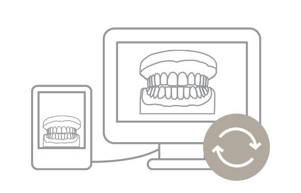 Po potrebi lahko odvzamete ponovni odtis zob kadarkoli med zdravljenjem. Ponovni odtis je vštet v ceno načrta zdravljenja.